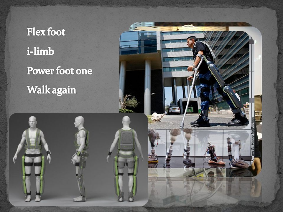 Flex foot i-limb Power foot one Walk again