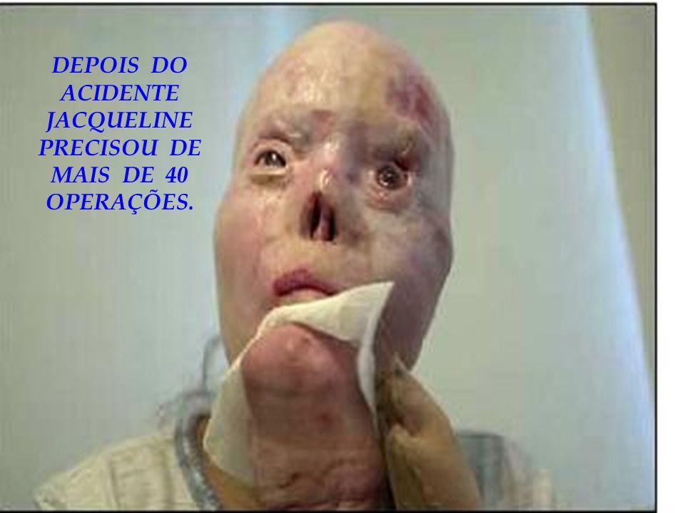 DEPOIS DO ACIDENTE JACQUELINE PRECISOU DE MAIS DE 40 OPERAÇÕES.