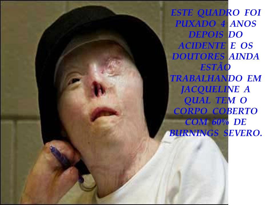 ESTE QUADRO FOI PUXADO 4 ANOS DEPOIS DO ACIDENTE E OS DOUTORES AINDA ESTÃO TRABALHANDO EM JACQUELINE A QUAL TEM O CORPO COBERTO COM 60% DE BURNINGS SEVERO.