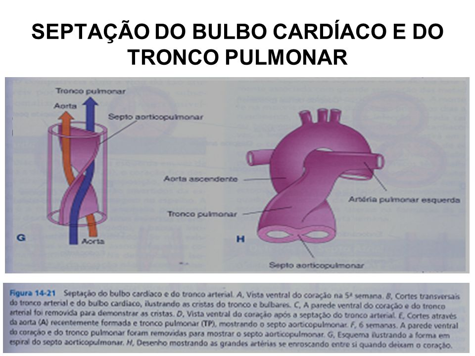 SEPTAÇÃO DO BULBO CARDÍACO E DO TRONCO PULMONAR
