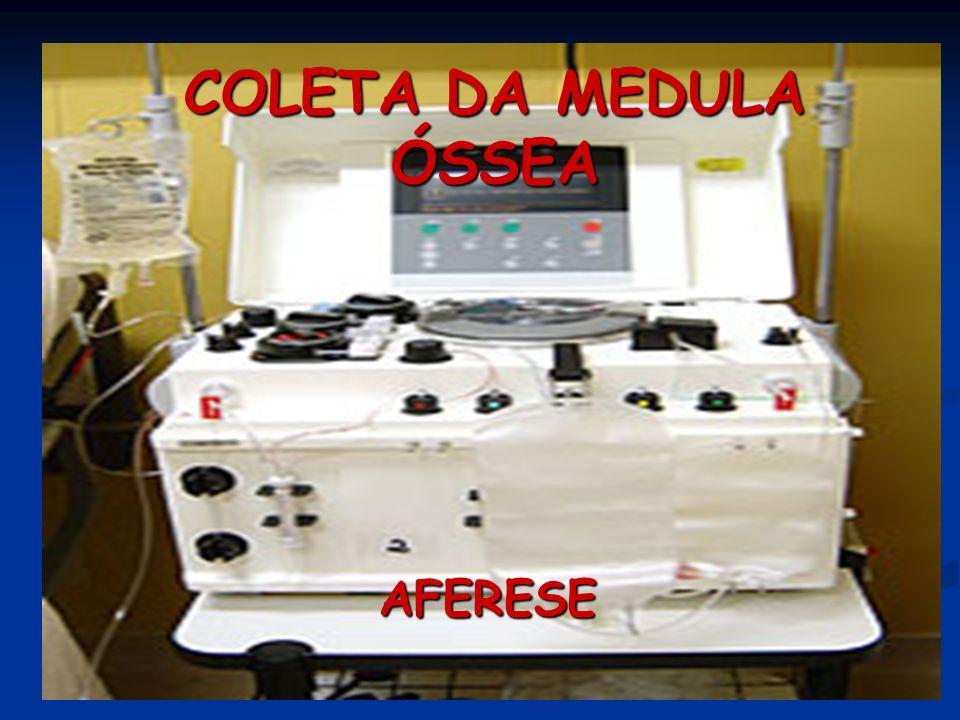 COLETA DA MEDULA ÓSSEA AFERESE