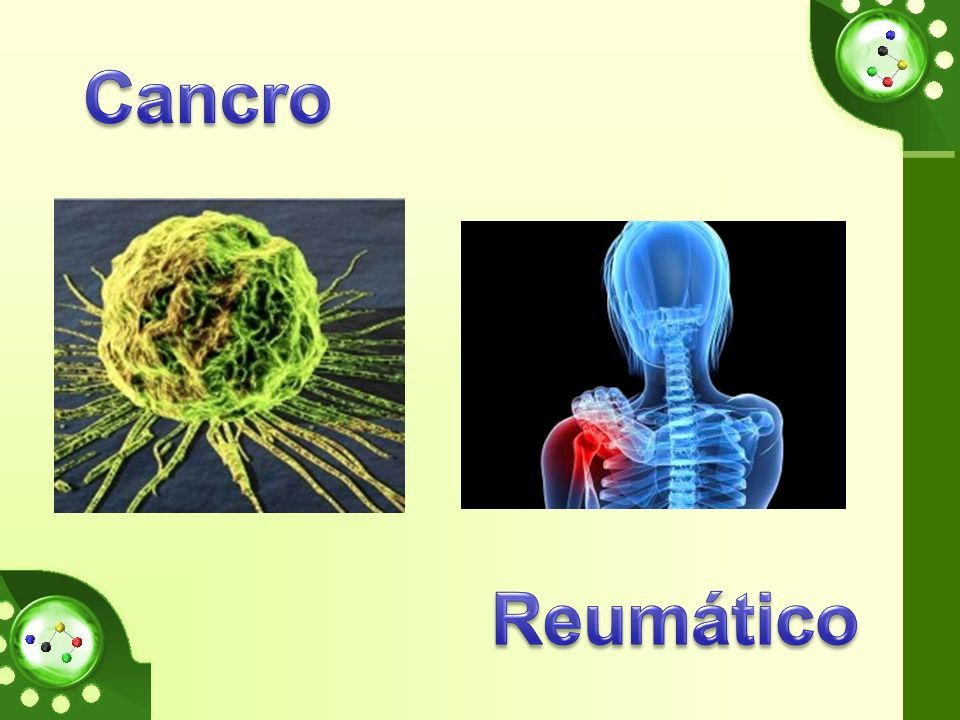 Cancro Reumático