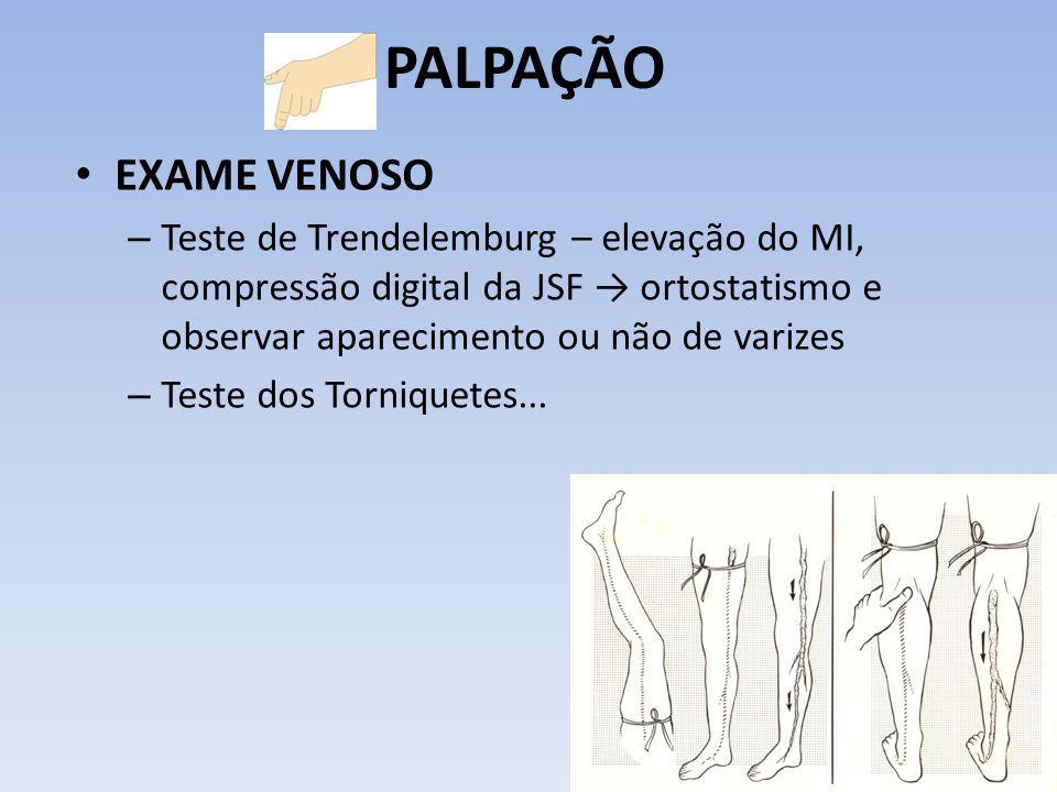 PALPAÇÃO EXAME VENOSO. Teste de Trendelemburg – elevação do MI, compressão digital da JSF → ortostatismo e observar aparecimento ou não de varizes.