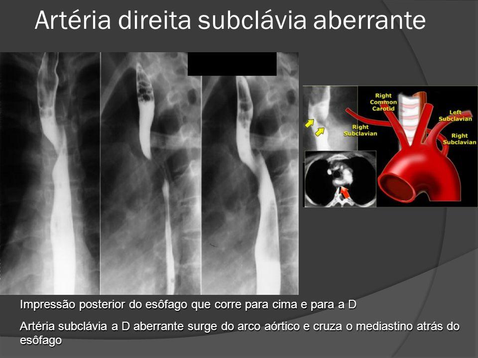 Artéria direita subclávia aberrante