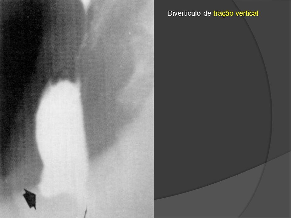 Diverticulo de tração vertical