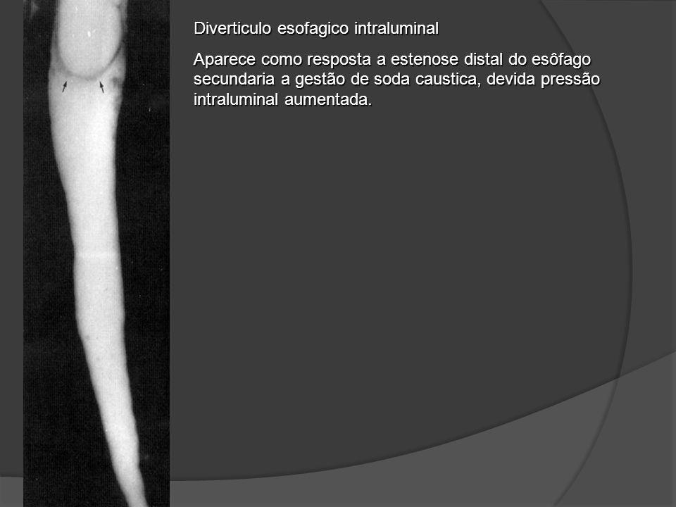 Diverticulo esofagico intraluminal