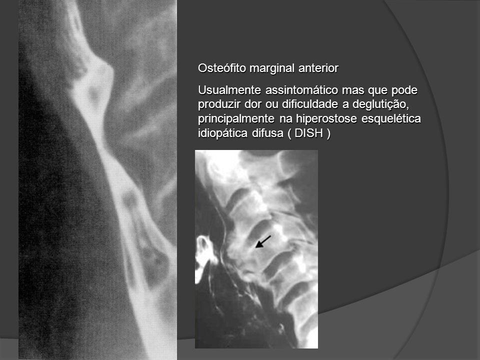 Osteófito marginal anterior