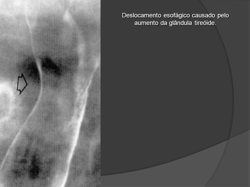 Deslocamento esofágico causado pelo aumento da glândula tireóide.