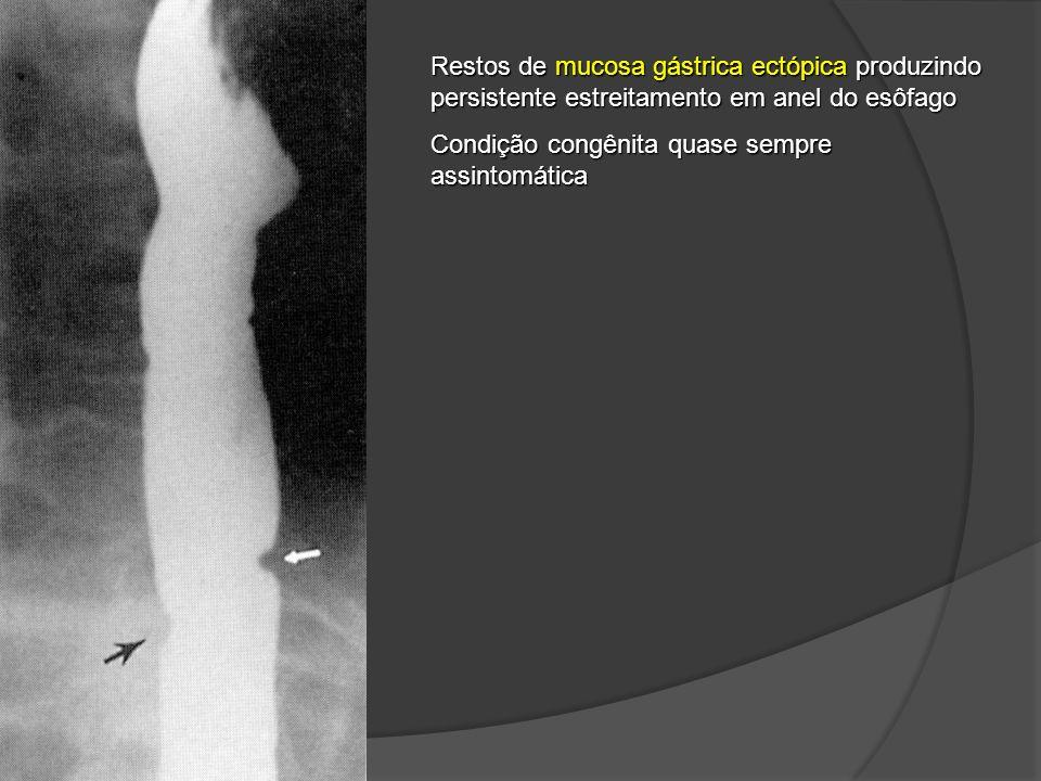 Restos de mucosa gástrica ectópica produzindo persistente estreitamento em anel do esôfago