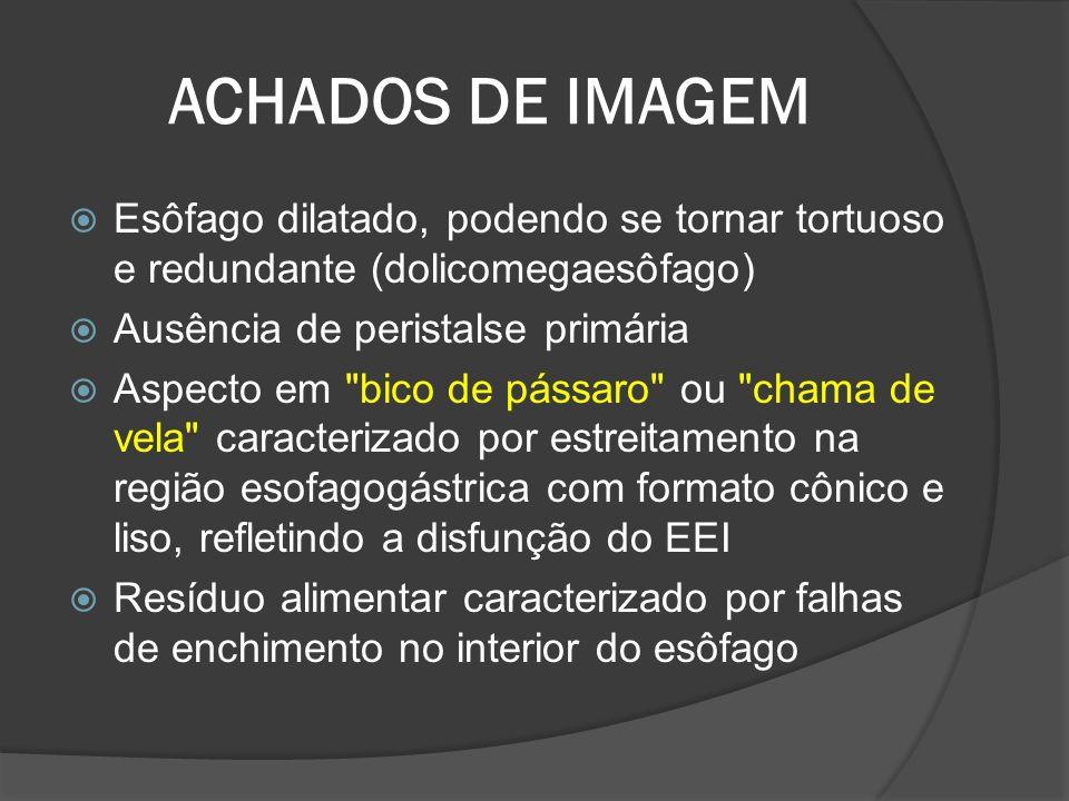 ACHADOS DE IMAGEM Esôfago dilatado, podendo se tornar tortuoso e redundante (dolicomegaesôfago) Ausência de peristalse primária.