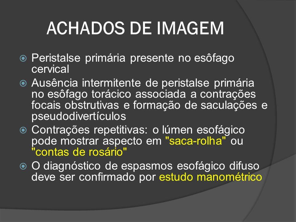 ACHADOS DE IMAGEM Peristalse primária presente no esôfago cervical