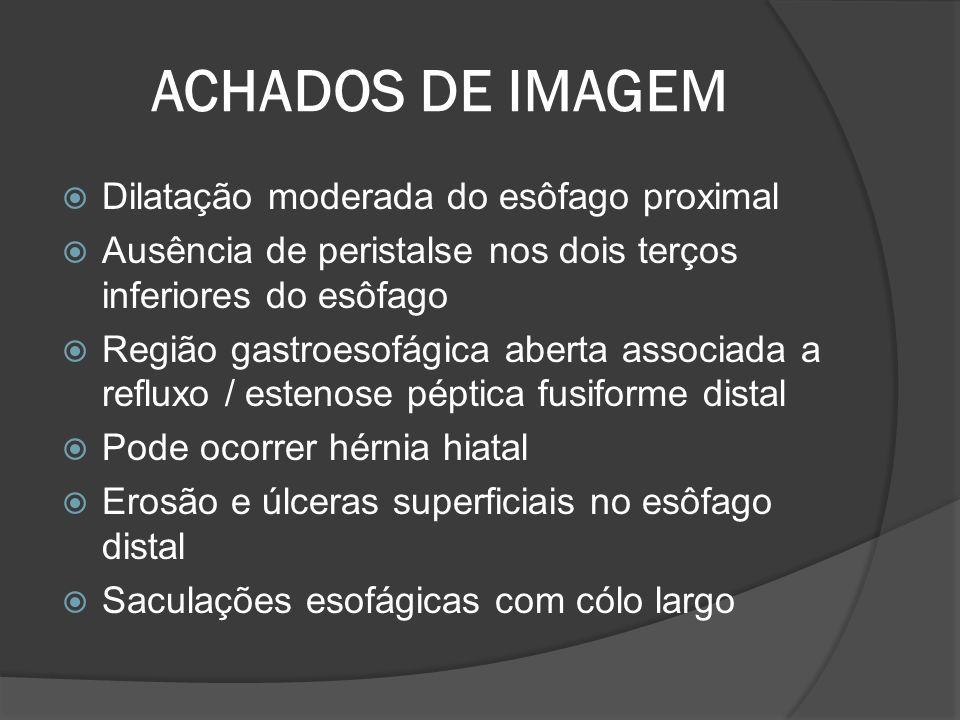 ACHADOS DE IMAGEM Dilatação moderada do esôfago proximal