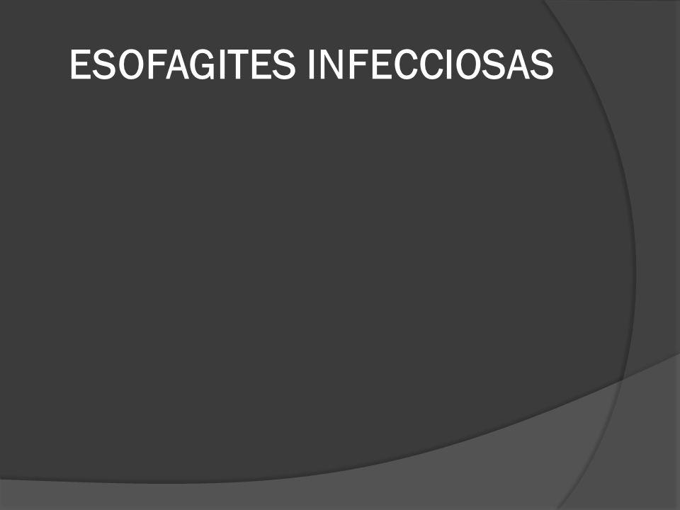 ESOFAGITES INFECCIOSAS
