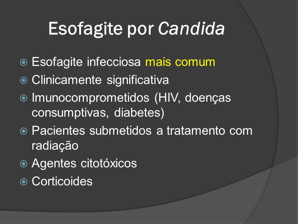 Esofagite por Candida Esofagite infecciosa mais comum