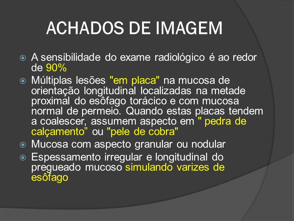 ACHADOS DE IMAGEM A sensibilidade do exame radiológico é ao redor de 90%