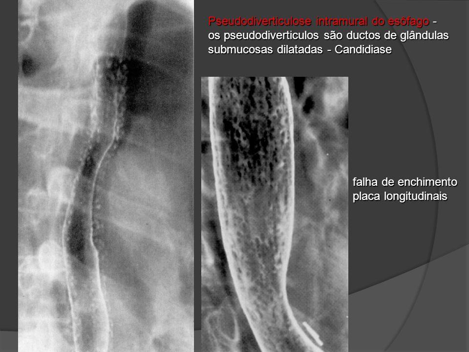 Pseudodiverticulose intramural do esôfago - os pseudodiverticulos são ductos de glândulas submucosas dilatadas - Candidiase