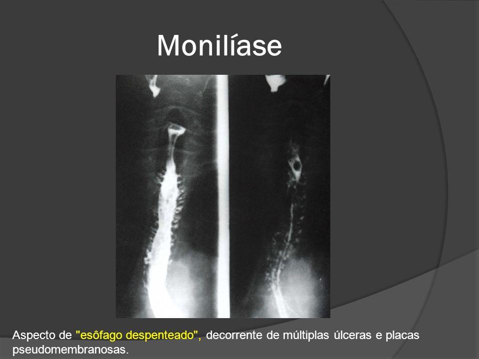 Monilíase Aspecto de esôfago despenteado , decorrente de múltiplas úlceras e placas.