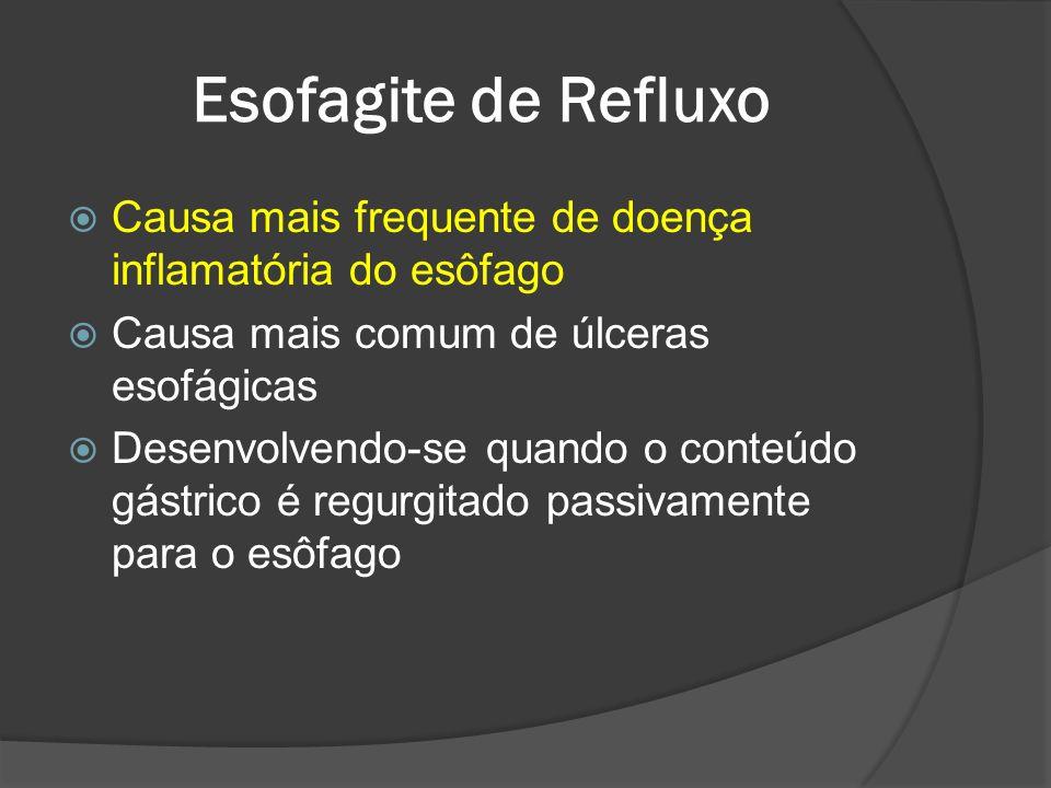 Esofagite de Refluxo Causa mais frequente de doença inflamatória do esôfago. Causa mais comum de úlceras esofágicas.