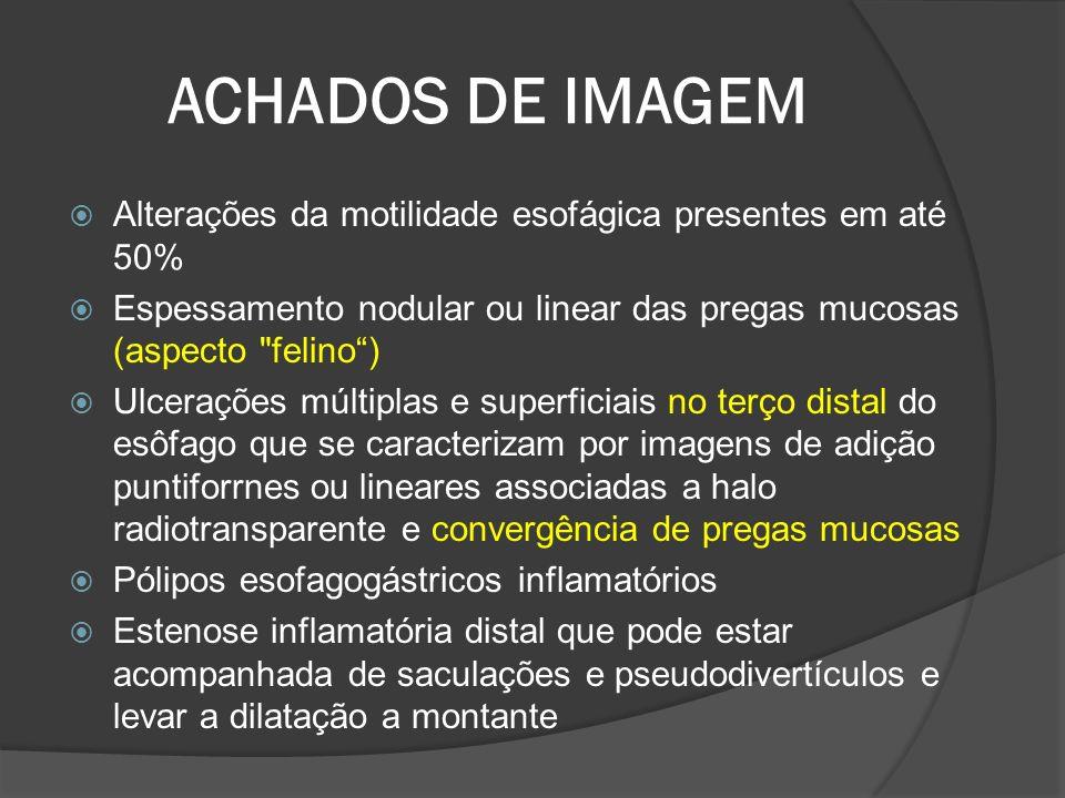 ACHADOS DE IMAGEM Alterações da motilidade esofágica presentes em até 50% Espessamento nodular ou linear das pregas mucosas (aspecto felino )