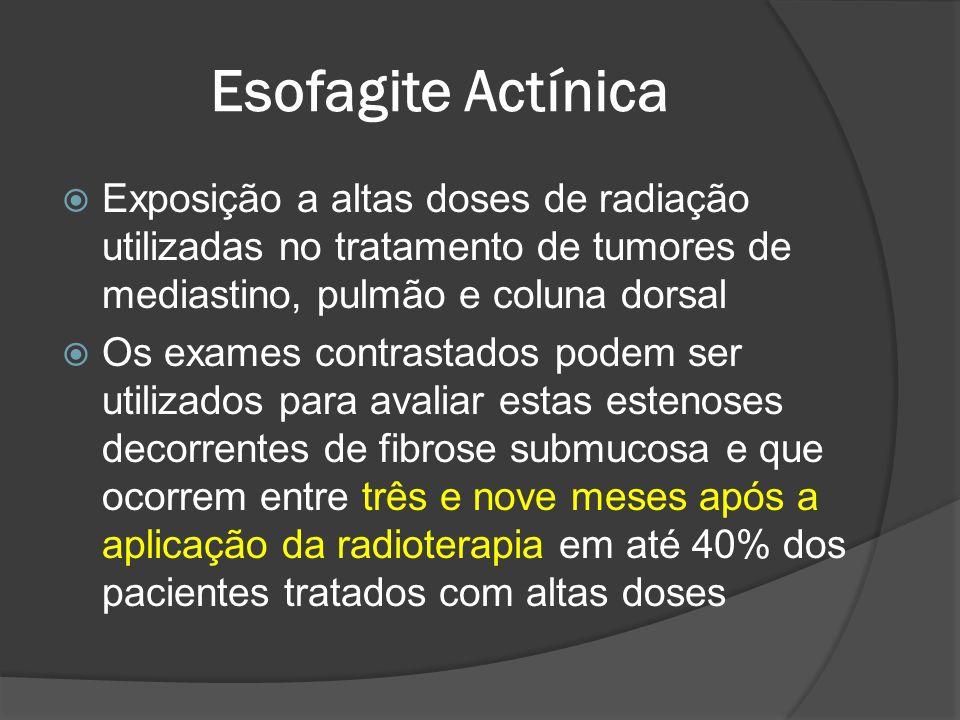 Esofagite Actínica Exposição a altas doses de radiação utilizadas no tratamento de tumores de mediastino, pulmão e coluna dorsal.