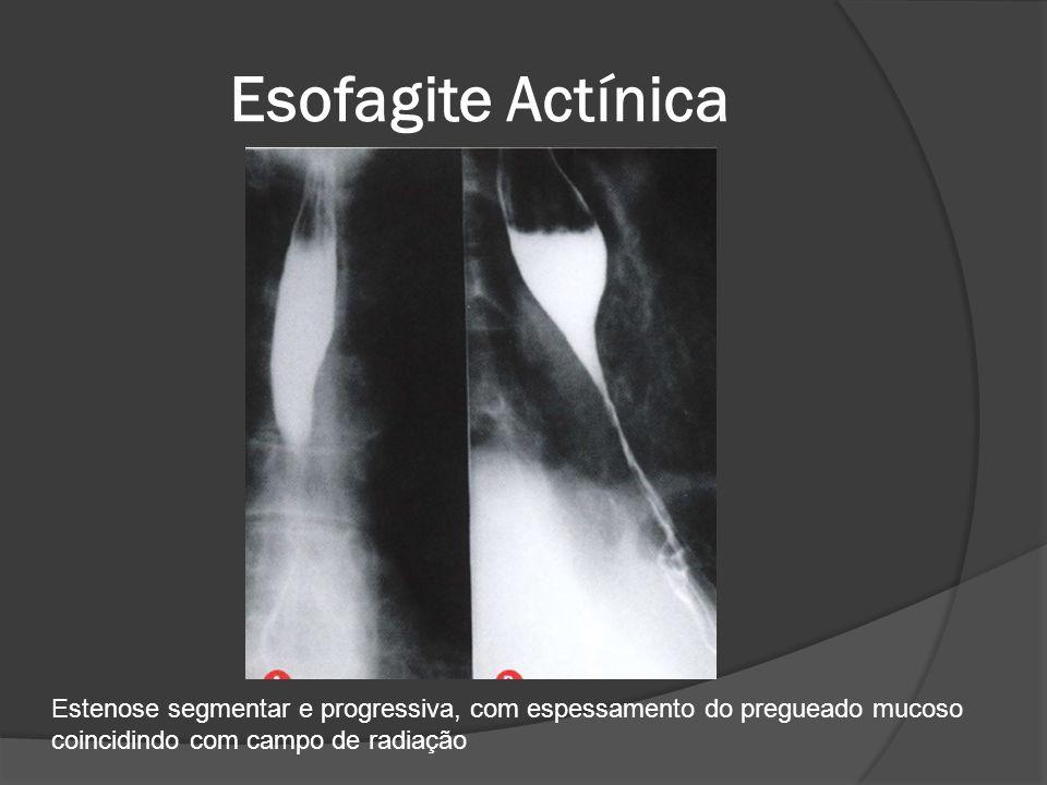 Esofagite Actínica Estenose segmentar e progressiva, com espessamento do pregueado mucoso.