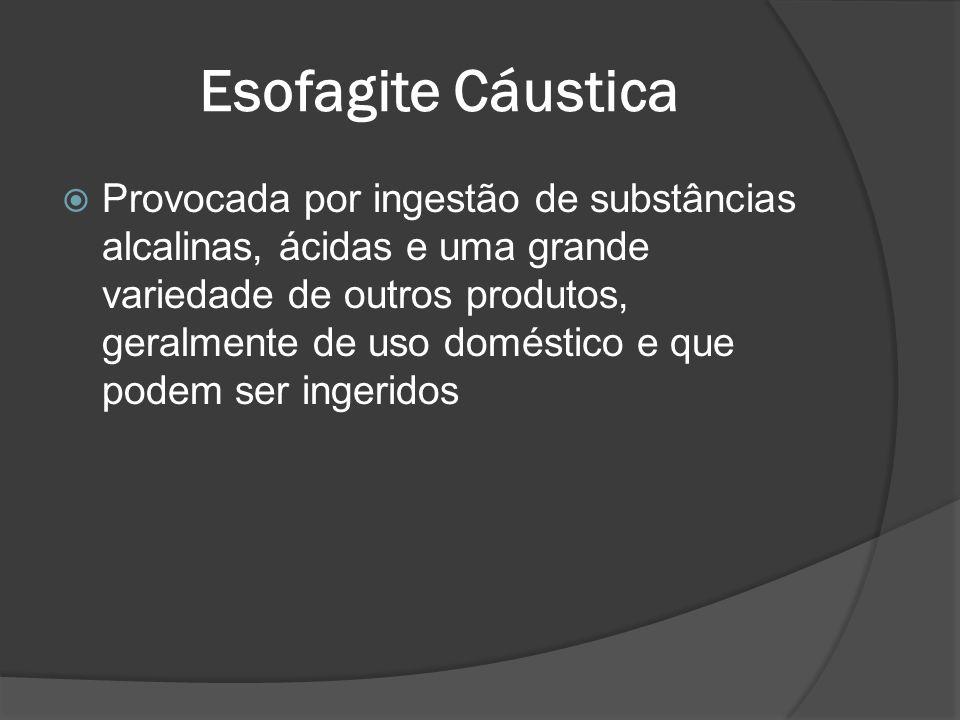 Esofagite Cáustica