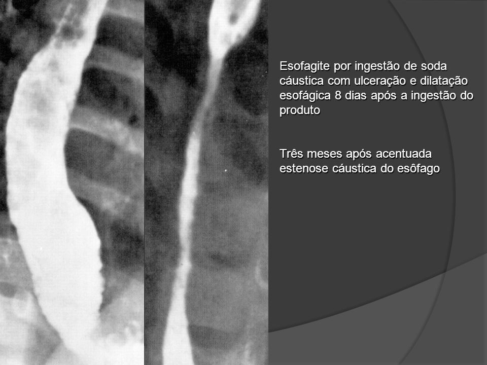 Esofagite por ingestão de soda cáustica com ulceração e dilatação esofágica 8 dias após a ingestão do produto