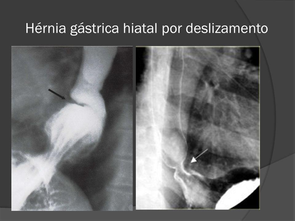 Hérnia gástrica hiatal por deslizamento