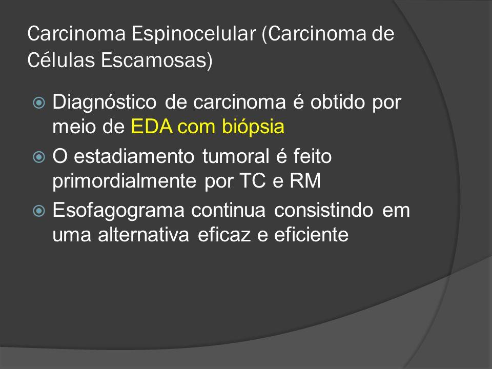 Carcinoma Espinocelular (Carcinoma de Células Escamosas)