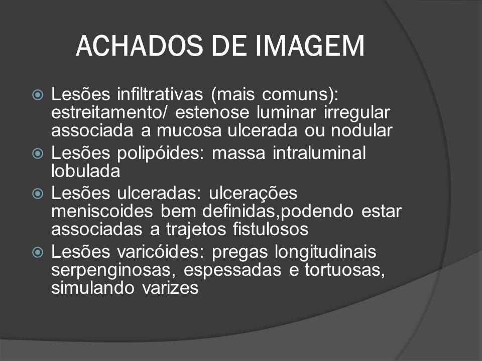ACHADOS DE IMAGEM Lesões infiltrativas (mais comuns): estreitamento/ estenose luminar irregular associada a mucosa ulcerada ou nodular.
