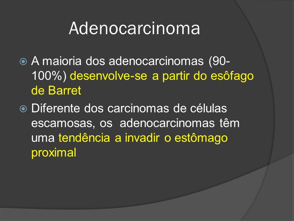 Adenocarcinoma A maioria dos adenocarcinomas (90-100%) desenvolve-se a partir do esôfago de Barret.