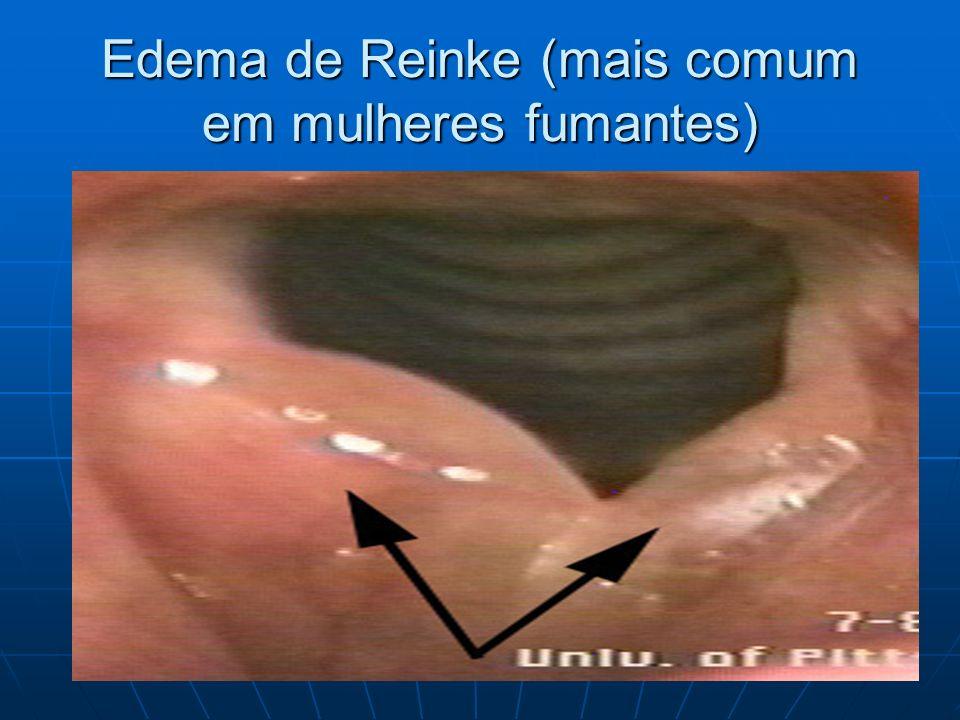Edema de Reinke (mais comum em mulheres fumantes)