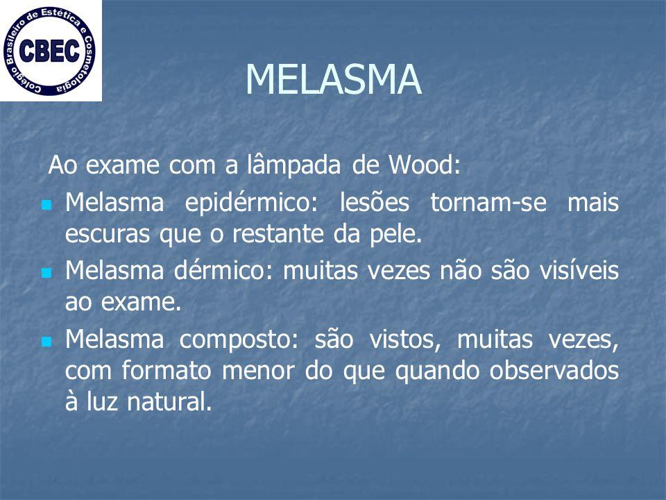 MELASMA Ao exame com a lâmpada de Wood: