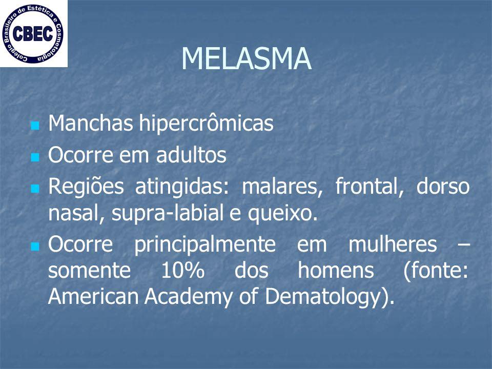 MELASMA Manchas hipercrômicas Ocorre em adultos