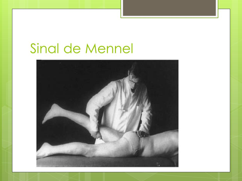 Sinal de Mennel