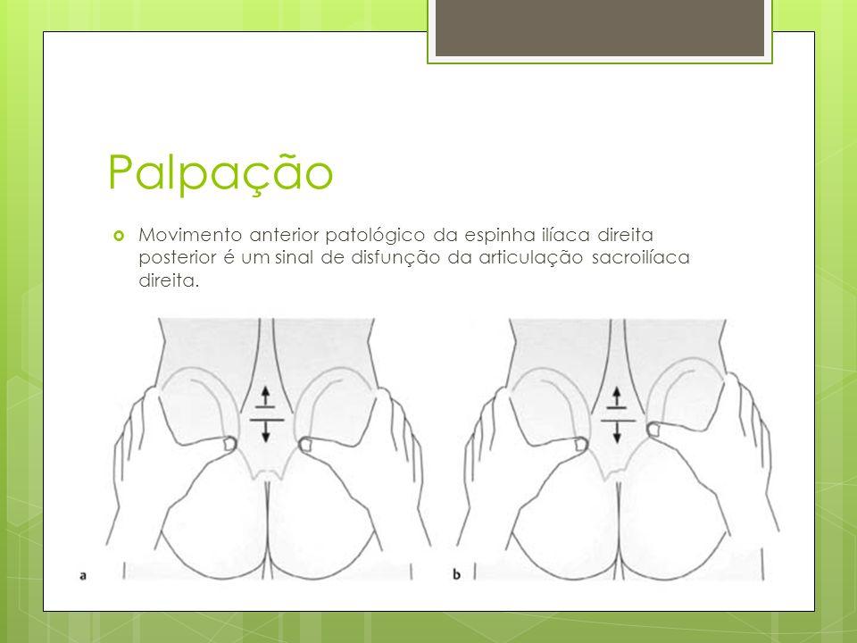 Palpação Movimento anterior patológico da espinha ilíaca direita posterior é um sinal de disfunção da articulação sacroilíaca direita.