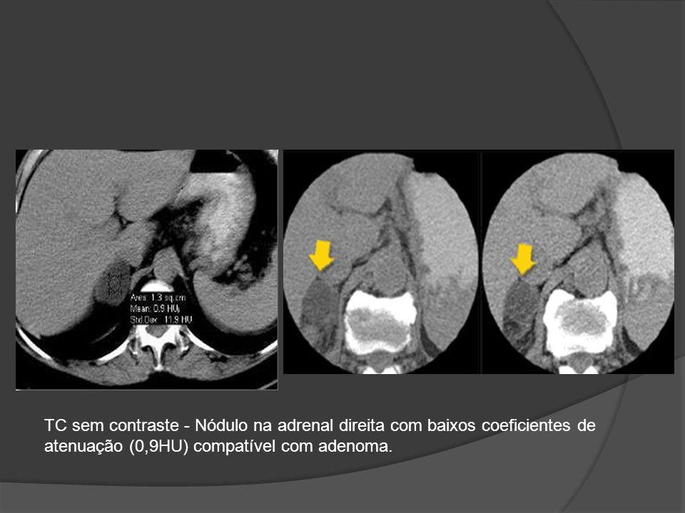 TC sem contraste - Nódulo na adrenal direita com baixos coeficientes de atenuação (0,9HU) compatível com adenoma.