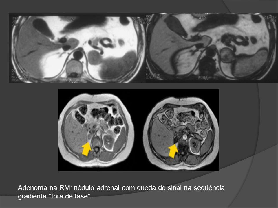 Adenoma na RM: nódulo adrenal com queda de sinal na seqüência gradiente fora de fase .