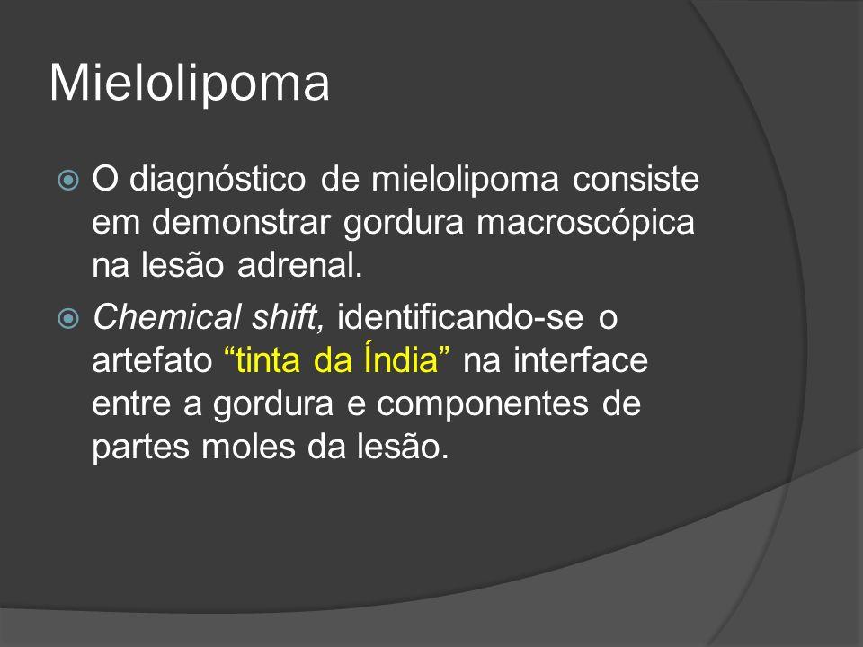 Mielolipoma O diagnóstico de mielolipoma consiste em demonstrar gordura macroscópica na lesão adrenal.