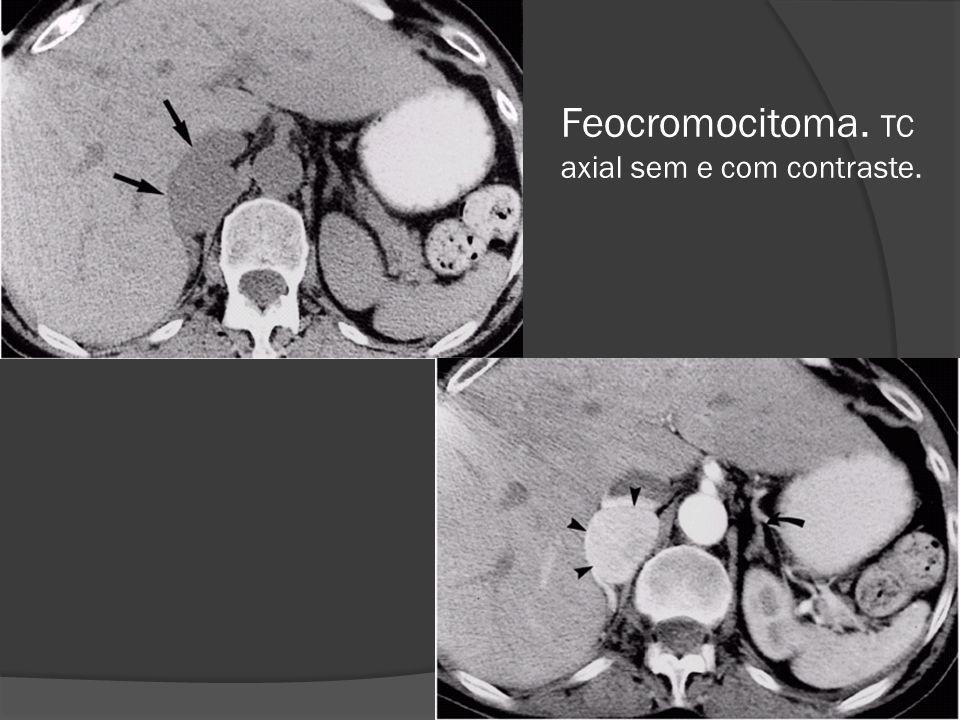 Feocromocitoma. TC axial sem e com contraste.