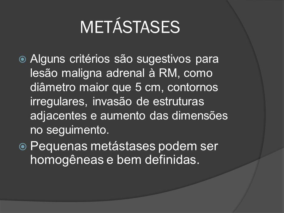 METÁSTASES Pequenas metástases podem ser homogêneas e bem definidas.