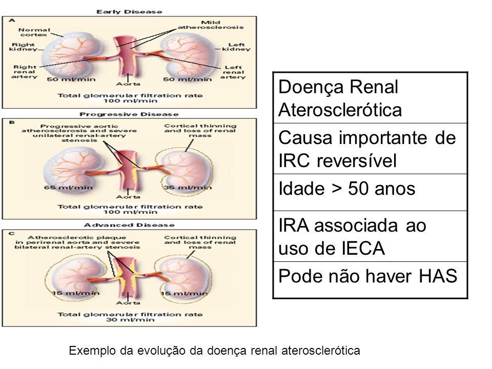 Doença Renal Aterosclerótica Causa importante de IRC reversível