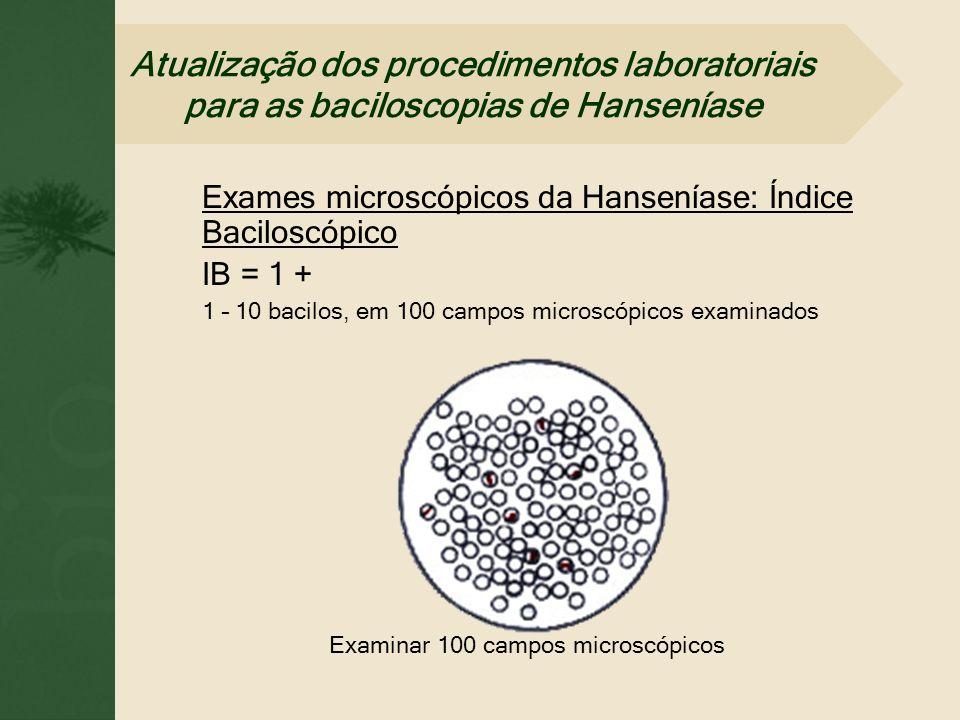 Examinar 100 campos microscópicos