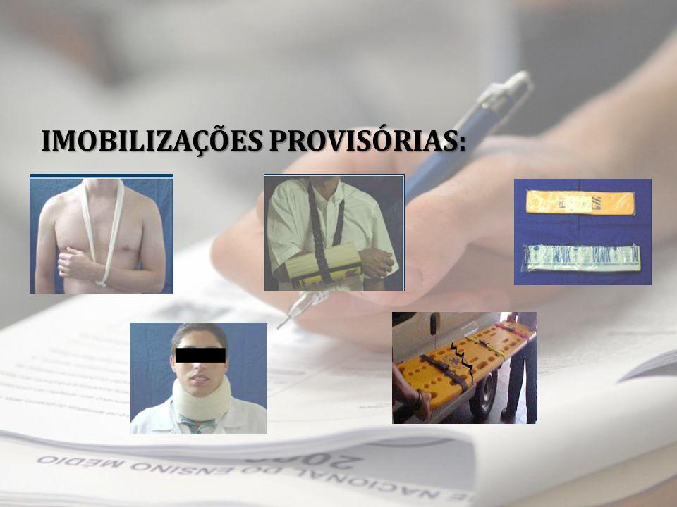 IMOBILIZAÇÕES PROVISÓRIAS: