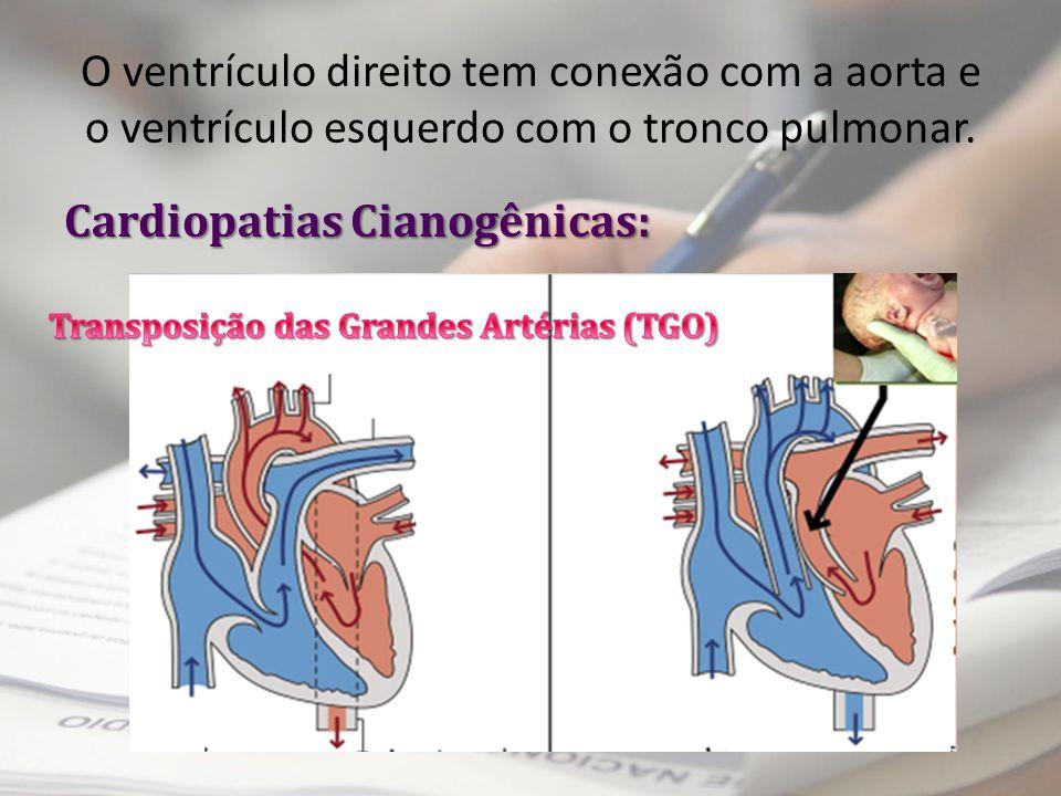 Cardiopatias Cianogênicas: