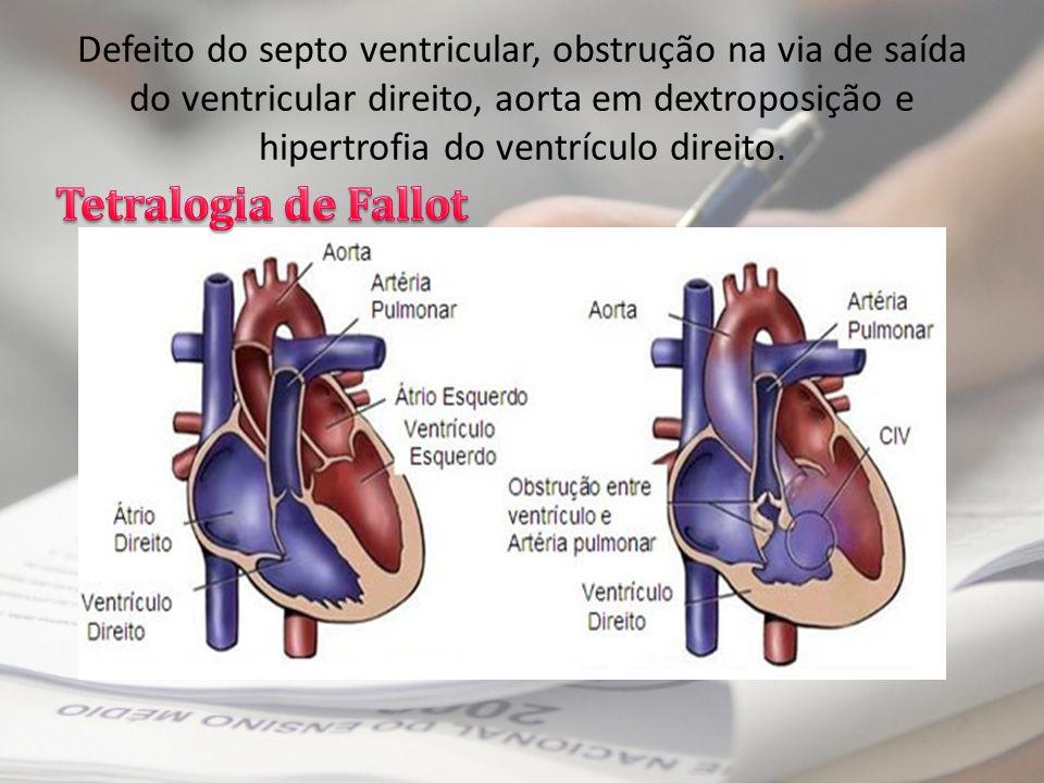 Defeito do septo ventricular, obstrução na via de saída do ventricular direito, aorta em dextroposição e hipertrofia do ventrículo direito.