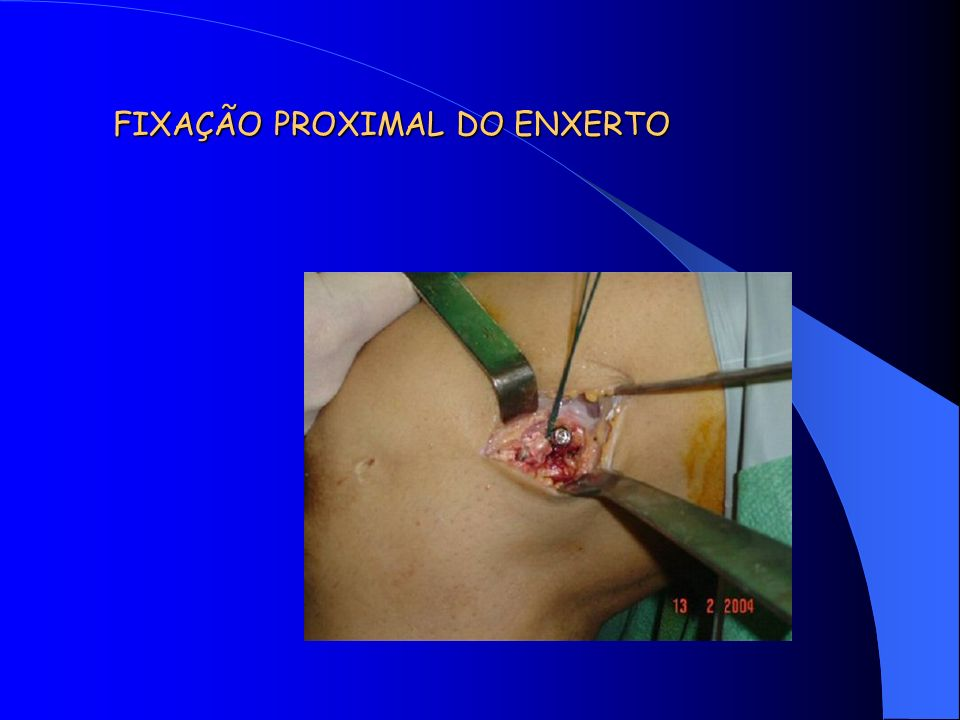 FIXAÇÃO PROXIMAL DO ENXERTO