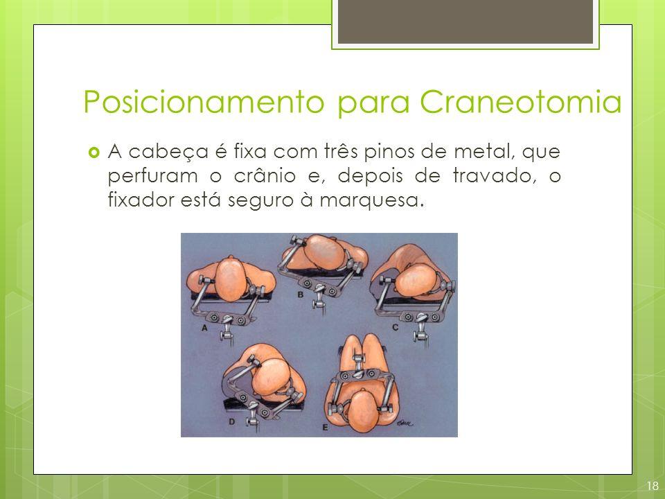 Posicionamento para Craneotomia