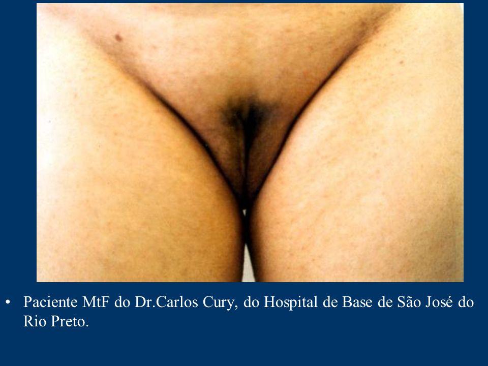 Paciente MtF do Dr.Carlos Cury, do Hospital de Base de São José do Rio Preto.