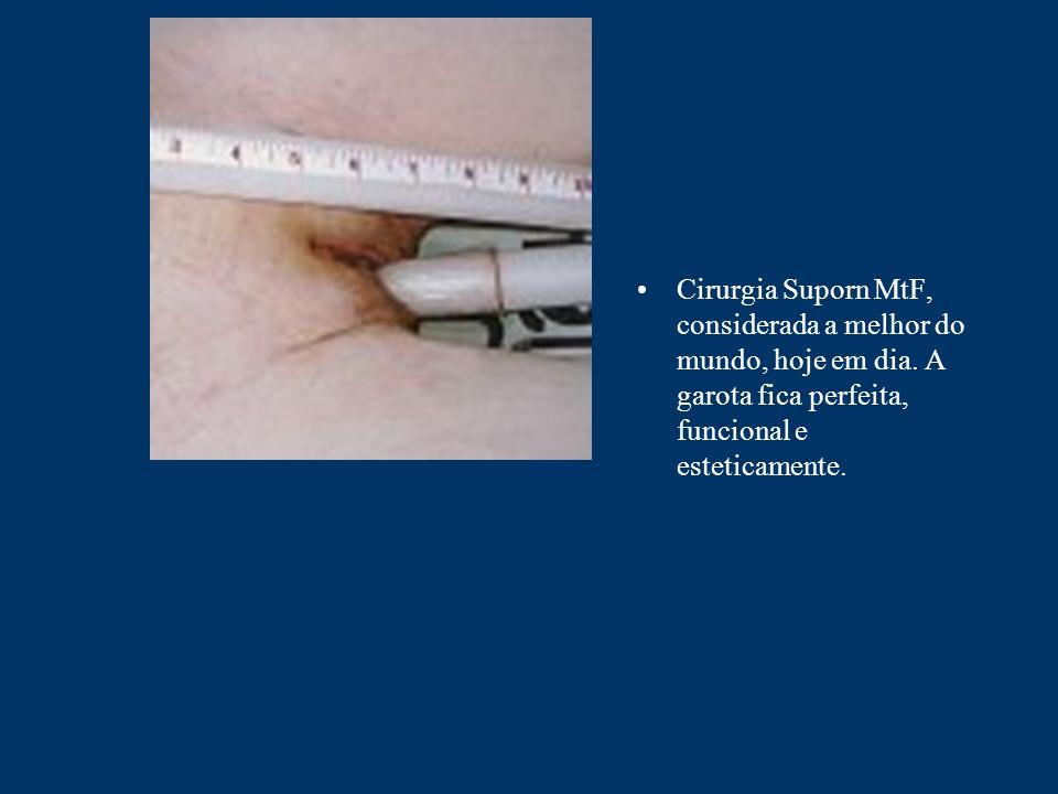 Cirurgia Suporn MtF, considerada a melhor do mundo, hoje em dia